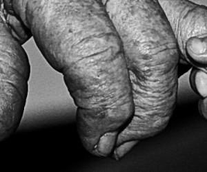 Tous égaux face au vieillissement ?