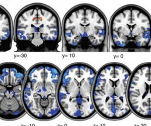 Un séjour dans l'espace modifie le cerveau !