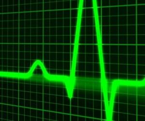 Cardiologs et le deep learning sur les électrocardiogrammes