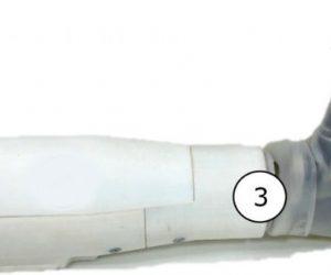 Une prothèse de bras qui décode les mouvements du membre fantôme