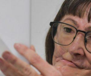 Au Brésil, smartphone et silicone pour reconstruire un visage