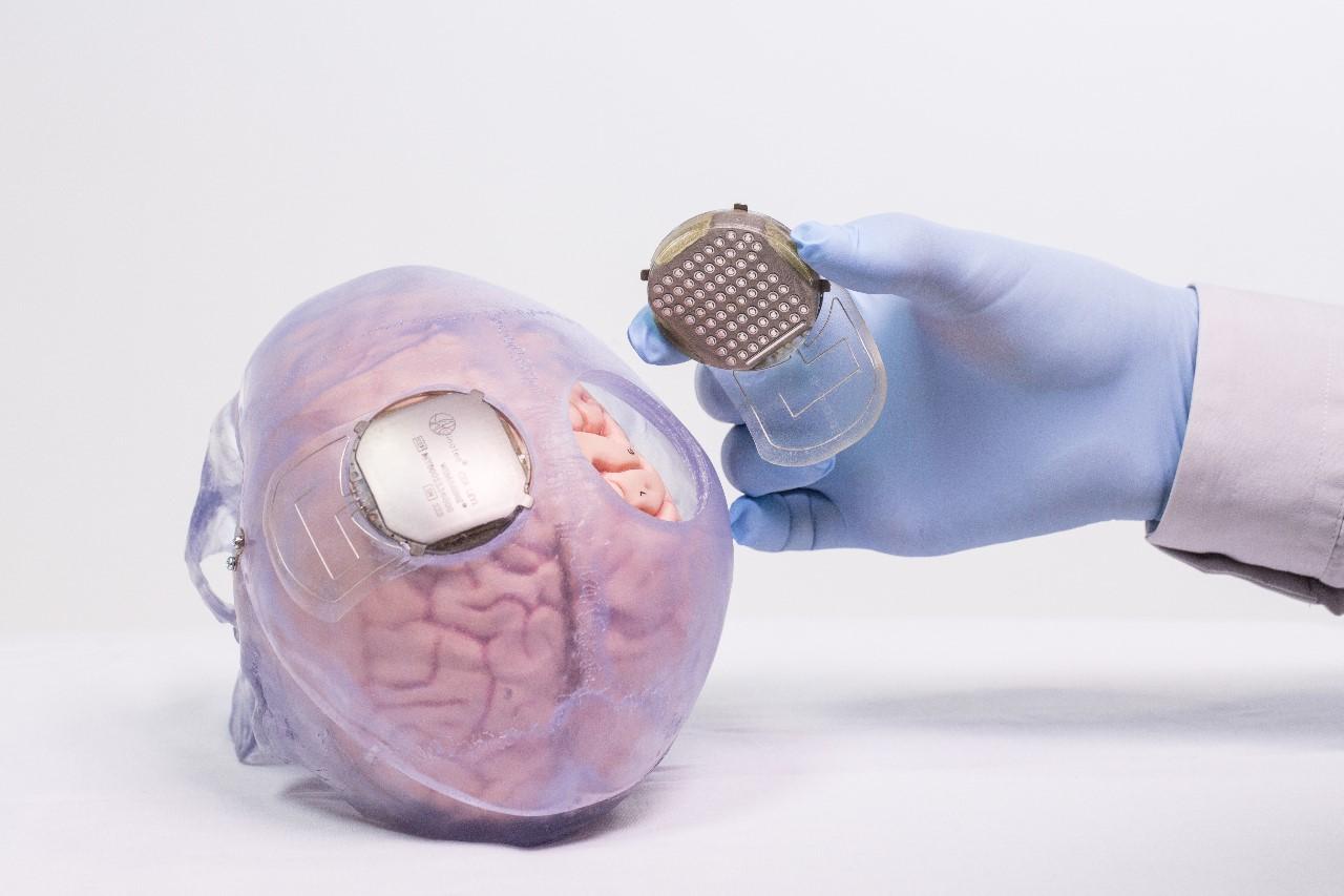 neuroprothèse de Clinatec LaBreche