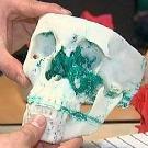 L'impression 3D au service de la reconstruction faciale