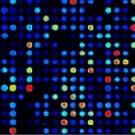 Des puces à ADN pour améliorer les diagnostics