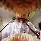 Nanos : un plombage qui tue les bactéries et reminéralise la dent