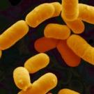 Probiotiques et obésité : des experts contre-attaquent